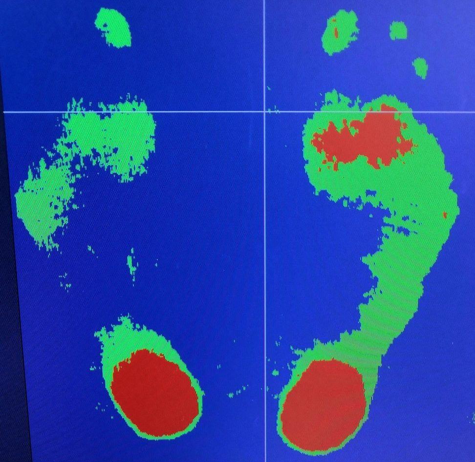 足の重心測定